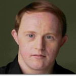 Chris Burke, American actor with Down syndrome (Photo credit: Christopher Voelker)
